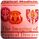 The Imaging of Tropical Disease